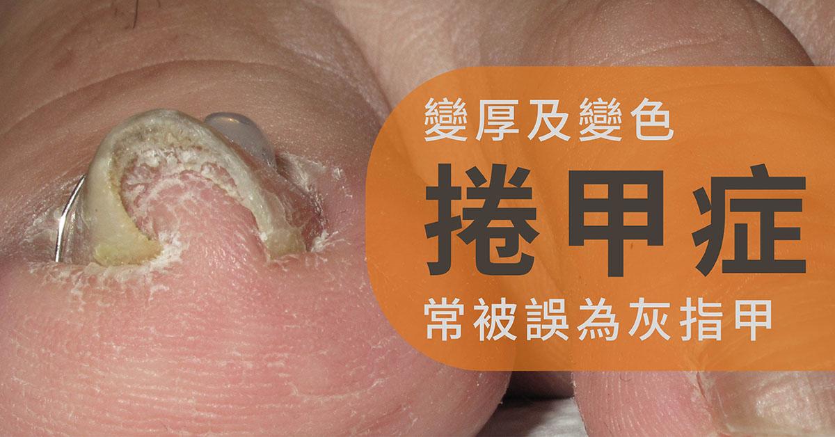 捲甲,灰指甲,剪指甲,黴菌感染,細菌感染,