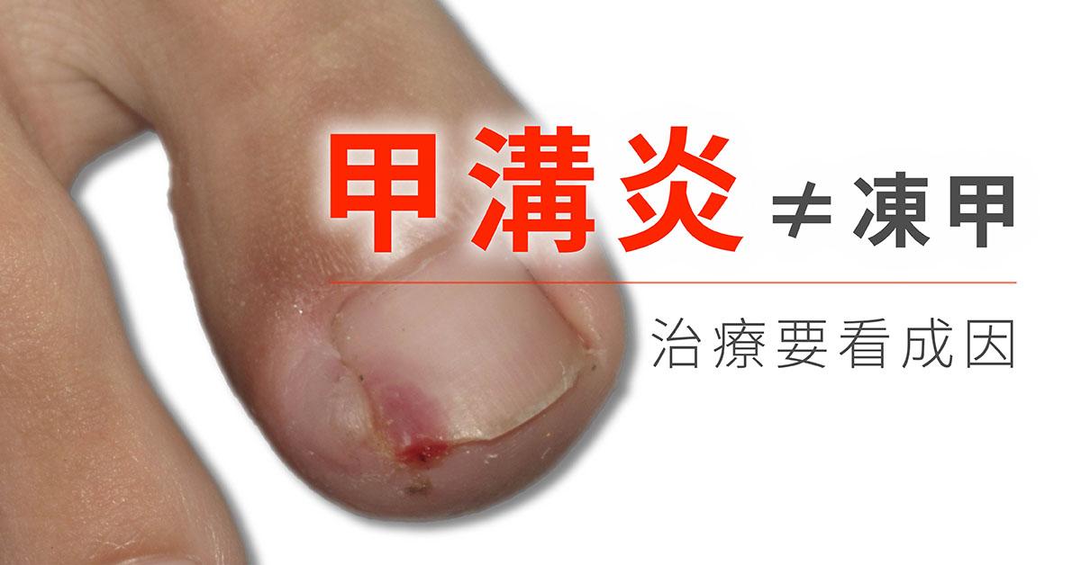 甲溝炎,細菌感染,葡萄球菌,鏈球菌,指甲不當修剪,碰撞與擠壓,反覆刺激,化學治療藥物,指甲矯正器,指甲矯正,趾甲矯正,凍甲,凍甲治療,嵌甲治療,嵌甲,拔指甲,