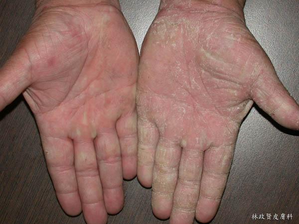 手癬,黴菌感染