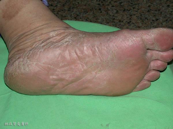 香港腳,足癬