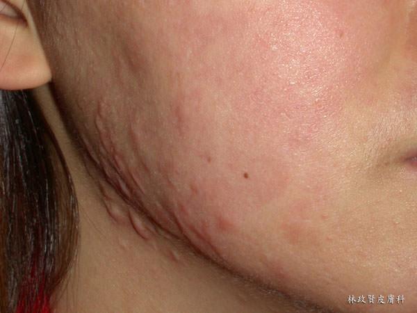 凸疤,青春痘疤,青春痘,痘疤,痘疤,除痘疤,蟹足腫,疤痕,