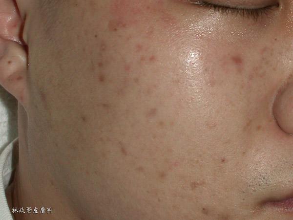 褐疤,青春痘疤,青春痘,痘疤,痘疤,黑色素沈澱,飛梭雷射,除痘疤,色素沉澱,