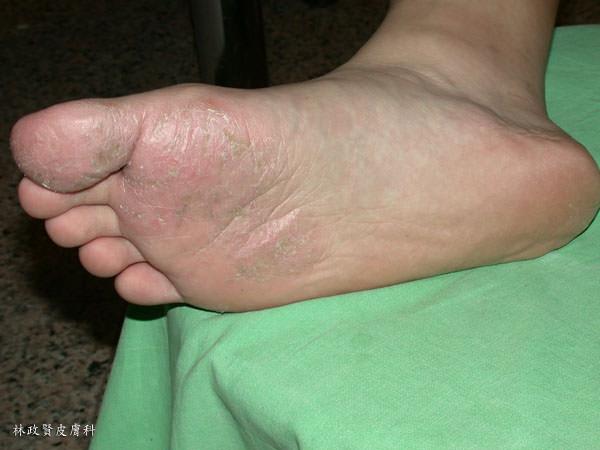 香港腳,足癬,青少年足底皮膚病,