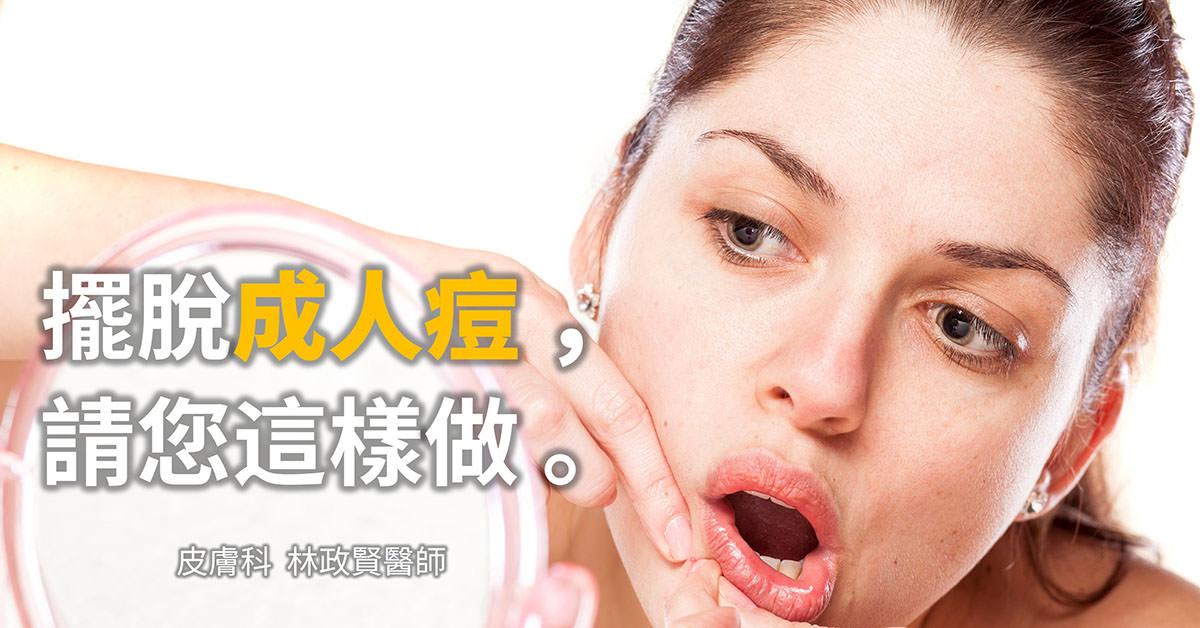 痘痘,粉刺,痤瘡,春青痘,成人痘,口周皮膚炎,荷爾蒙療法,pcos,多囊性卵巢症候群,成年痘,月經不規則,生理期不規則,無月經,生理期,多囊性卵巢徵候群
