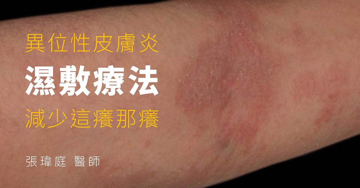 濕敷療法,異位性皮膚炎,慢性濕疹,乾癬,照光療程,