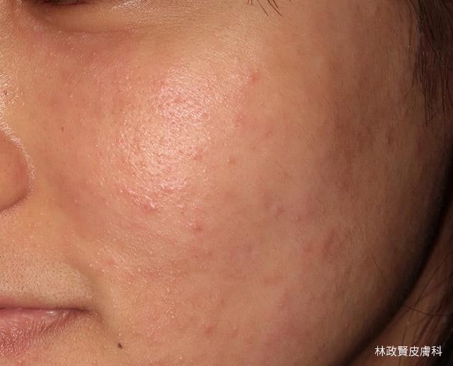 嗜伊紅性毛囊炎,eosinophilic folliculitis,太藤氏症,ofuji's disease