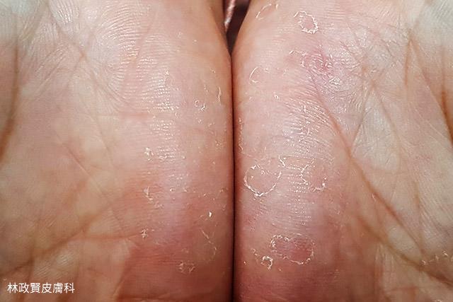 汗皰疹,汗疱疹,pompholyx,dyshidrosis,dyshidrotic dermatitis