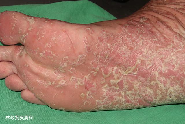 乾癬,腳底,手掌,膿皰