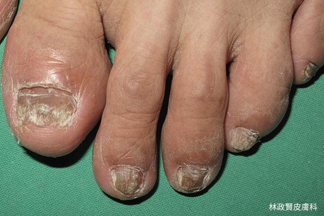 灰指甲,灰趾甲,甲癬