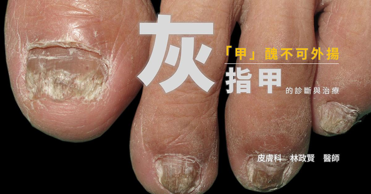 灰指甲,灰趾甲,甲癬,臭甲