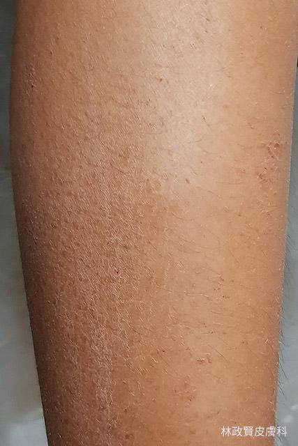冬季癢,冬季濕疹,冬季溼疹,乾燥性皮膚炎,乾燥性濕疹,xerosis,xerotic,dermatitis,eczema,asteatotic,hiemalis