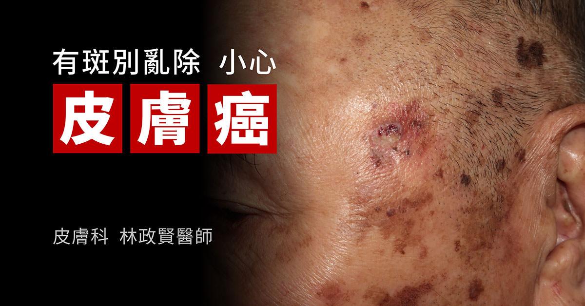 皮膚癌,skin cancer,雷射除斑,鱗狀細胞癌,squamous cell carcinoma,日光性角化症