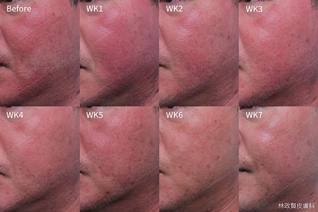 臉潮紅,臉紅,微血管擴張,血管絲,酒糟,酒渣,類固醇,玫瑰斑,rosacea,steroid dermatitis,soolantra,elidel,mirvaso,舒利達,舒立達,敏立紓,敏立舒