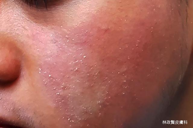 異位性皮膚炎,atopic dermatitis