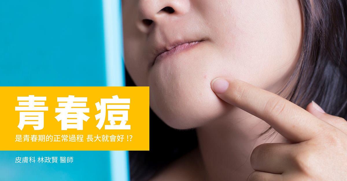 青春痘,粉刺,痘痘,高雄皮膚科推薦,高雄醫學美容
