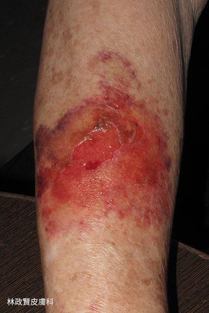 老年性紫瘢症,老年性紫斑症,senile purpura,active purpura