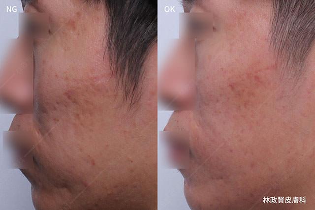 痘疤,凹洞,凹疤,皮下切割,皮下剝離,subcision,飛梭雷射,探索皮秒雷射