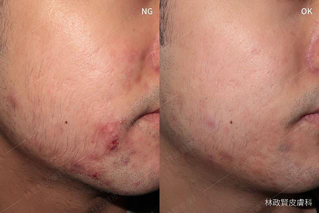 青春痘,痤瘡,粉刺,下巴,高雄青春痘推薦,牙膏,氟