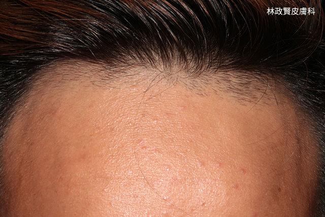 青春痘,痤瘡,粉刺,下巴,高雄青春痘推薦,髮油,pomade,acne,髮蠟