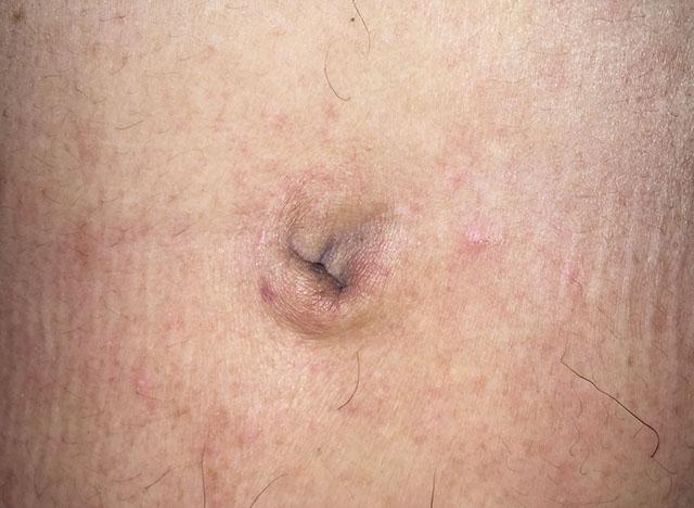疥瘡,Scabies,疥蟎,挪威疥,丘疹,蚊蟲,劇癢