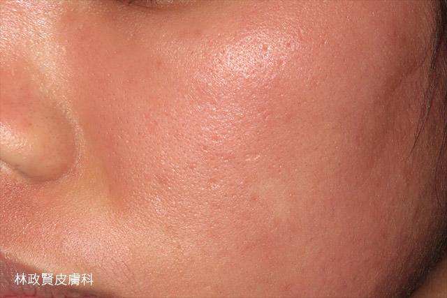 過敏性接觸性皮膚炎,紅,癢,浮腫