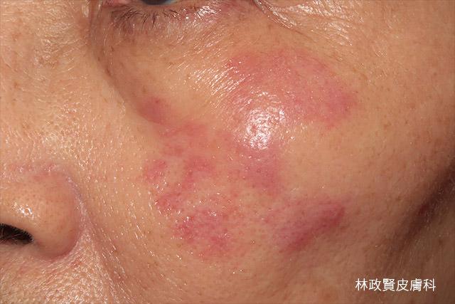 痘痘,青春痘,黴菌感染,臉癬,寵物傳染,