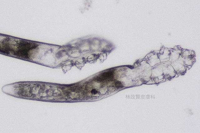 demodex,demodicosis,毛囊蠕形蟲症,顯微鏡