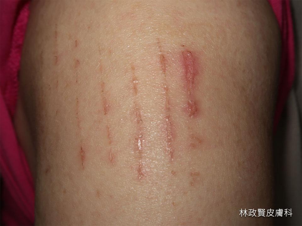 竹蓆皮膚炎,接觸性皮膚炎,水泡,紅疹