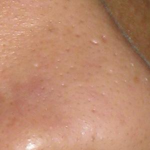 青春痘疤,凹洞,痘疤,凹疤,飛梭雷射,皮秒雷射