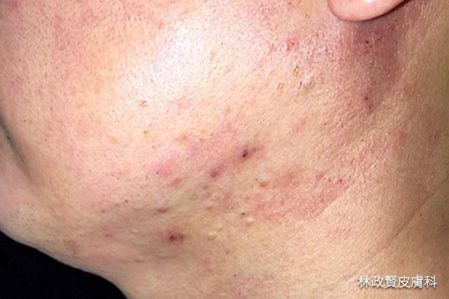 外力型痘痘,粉刺,丘疹,毛囊發炎,痘痘,安全帽,頭盔,口罩