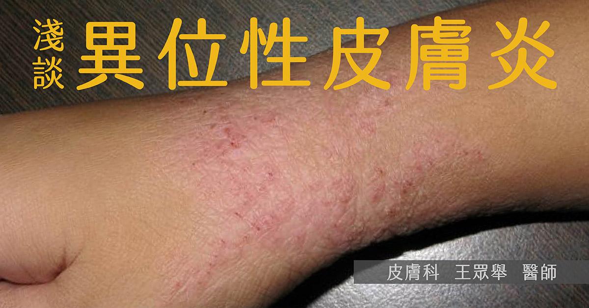 杜避炎,異位性皮膚炎,過敏,濕疹,Dupilumab,類固醇,Atopic dermatitis,AD