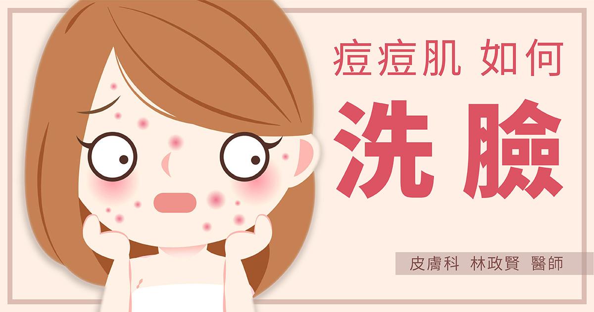 青春痘,痘痘,洗臉,洗面乳,面皰,痤瘡,油性,化妝水