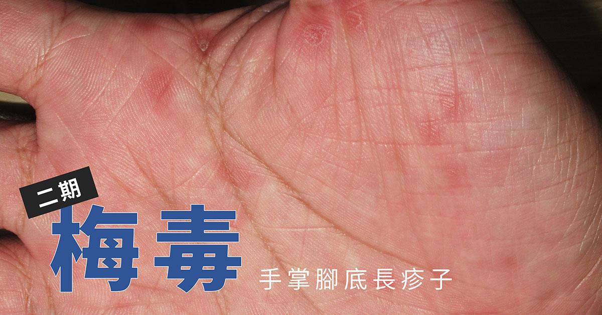 第二期梅毒